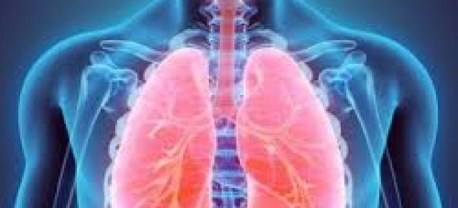Пневмонит (пульмонит)