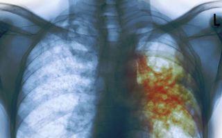 Туберкулез легких: причины, симптомы, диагностика и лечение