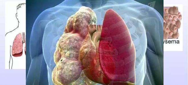 Эмфизема легких: причины, симптомы, лечение