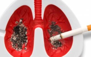 Причины и стадии рака легких