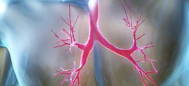 Хронический бронхит у взрослых: симптомы и способы медикаментозного лечения