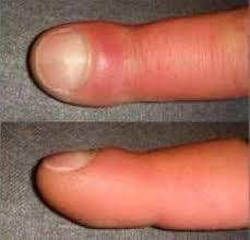 Пальцы при альвеолите