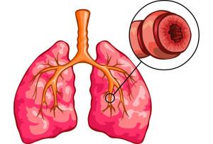 тяжесть астмы
