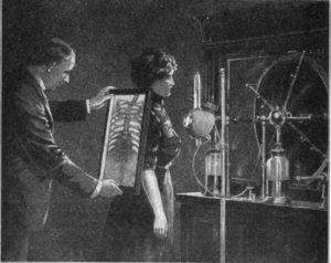 Рентгеноскопия легких