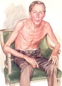 Хроническая обструктивная болезнь легких: внешний вид пациента