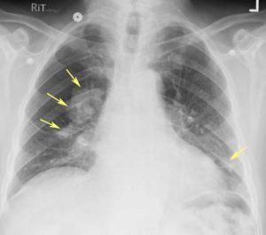 Рентгеновский снимок легких при пневмокониозе
