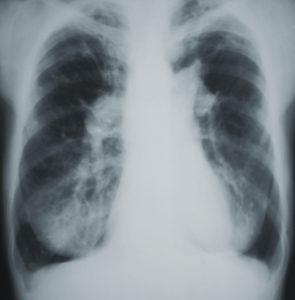 Легочная гипертензия на рентгенограмме
