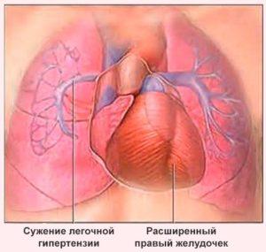 Проявления легочной гипертензии