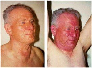 Синдром полой вены при раке