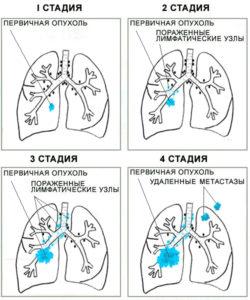 Стадии рака легкого