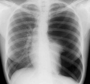 Рентген при пневмотораксе