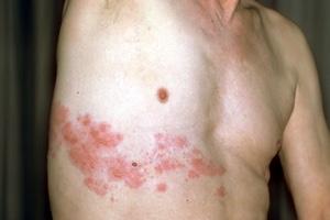 Причины боли в груди -опоясывающий лишай
