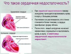 Одышка - признак сердечной недостаточности