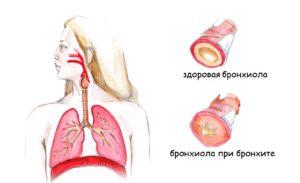 Одышка при обструктивной дыхательной недостаточности