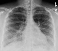 Один из методов диагностики - рентгенография легких