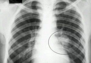 Туберкулез - причина кашля у детей