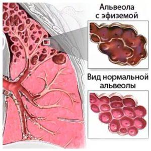 Эмфизема легких что это симптомы