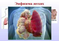 Эмфизема - заболевание легких