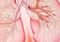 Кровохарканье - симптом легочных заболеваний