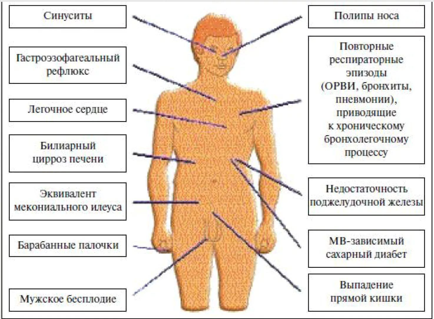 Патогенез муковисцидоза в схеме