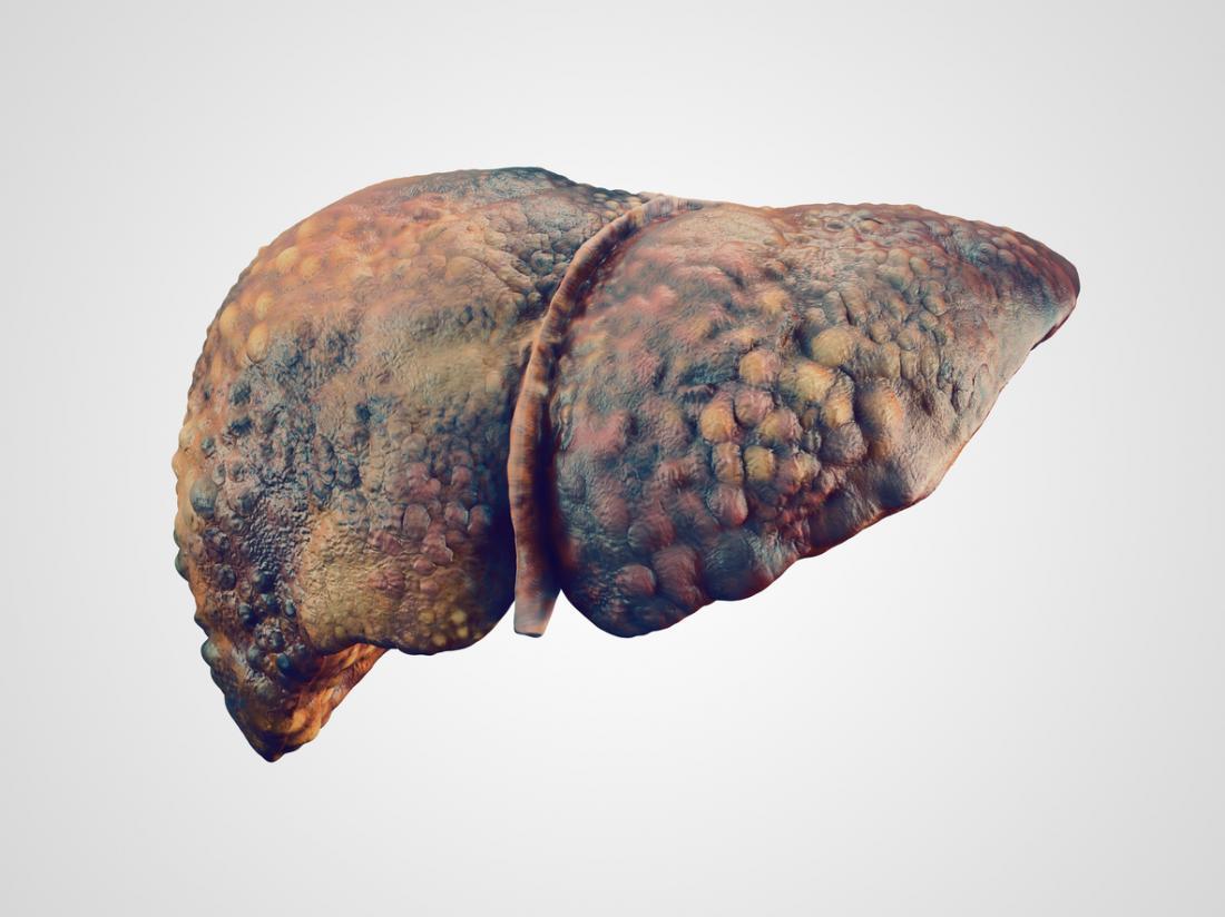 Алкогольная болезнь печени : причины, симптомы, диагностика, лечение